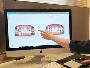 治療後の歯並びを確認