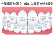 全顎矯正装置の装着例