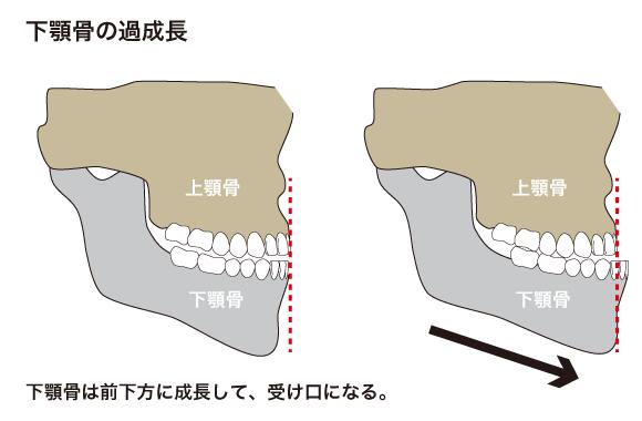 下顎骨の過成長