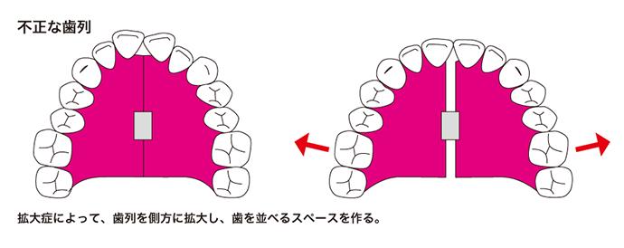 不正な歯列
